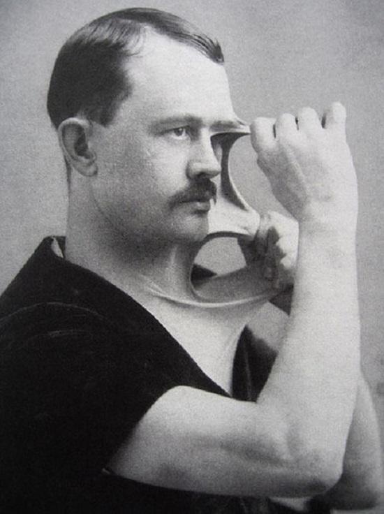 Мужчина с невероятно эластичной кожей. 1900-е